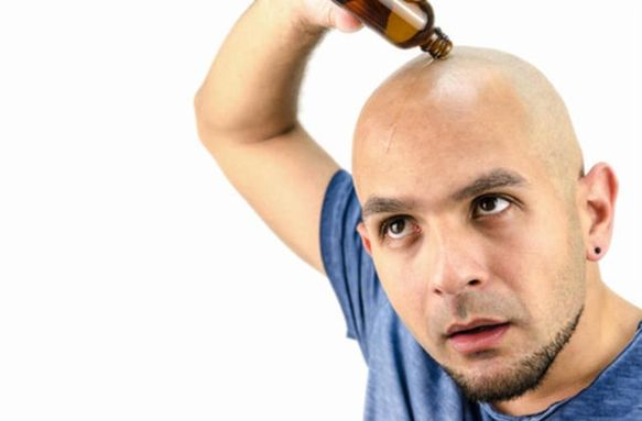 Preventive measures It is recommended to protect hair from baldness by following a healthy diet rich in proteins, vitamins and minerals, and to protect hair from frizz
