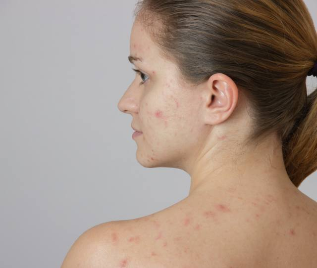 How To Get Rid Of Cystic Acne With These  Simple Completely Natural Tips That Really Truly Work