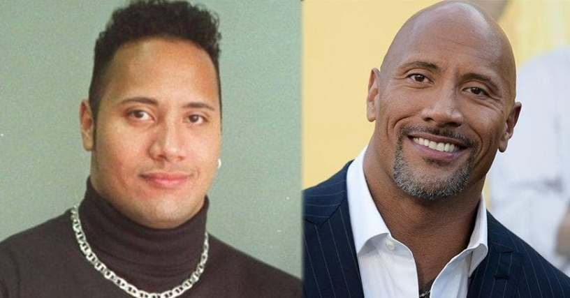 Bald Celebrities Famous People With Hair Loss