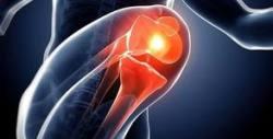 Физиотерапия при оперативно и неоперативно състояние след увреда на кръстна връзка, менискус и латерални връзки в коляното