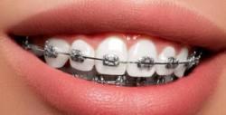 Преглед и консултация от ортодонт, плюс план за лечение при поставяне на брекети на горна или долна челюст, и полиране
