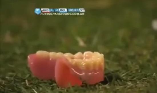 ob dentadura