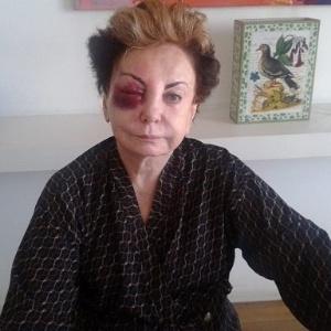 A atriz Beatriz Segall aparece com o rosto ferido após levar um tombo no Rio de Janeiro