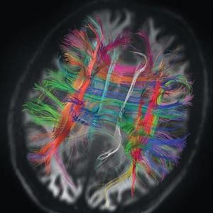 Os caminhos de fibra de um cérebro humano mostram como as principais vias dos lobos frontais se interligam, organizando-se em ângulos retos.