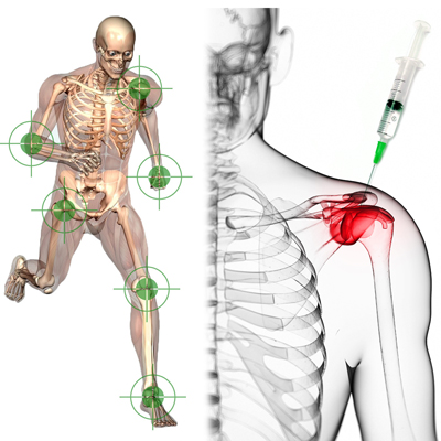 Joint injection therapy at Innergy Integrated Medicine