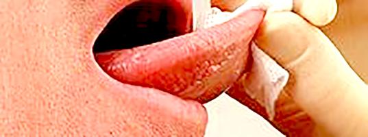 Új nyelv szájsebészeti műtéttel