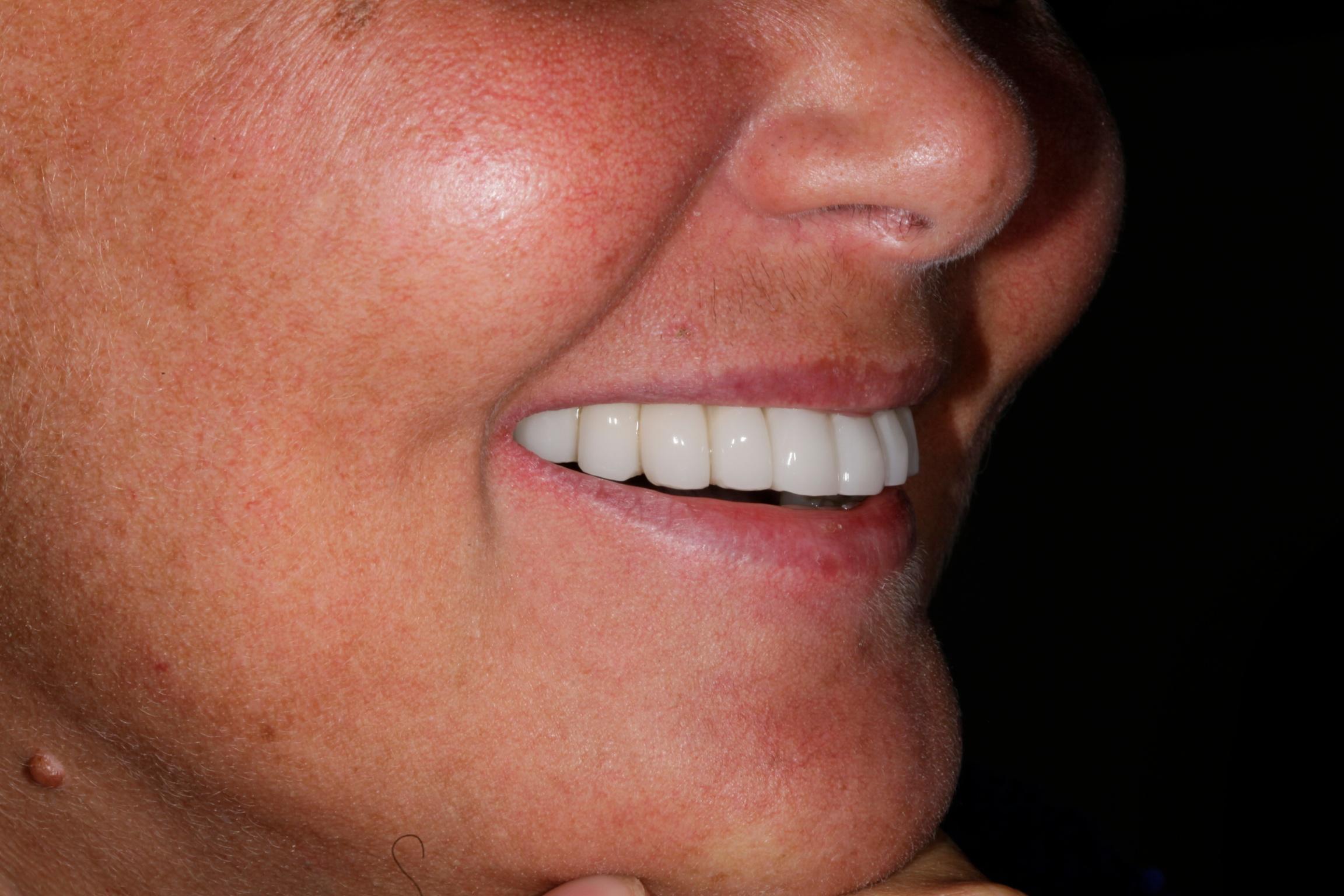 implantologia risultato provvisorio