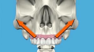 impianti dentali zigomatici