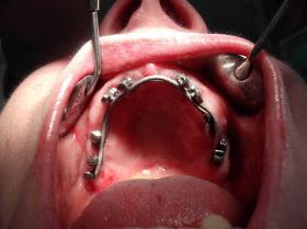 Impianti dentali con barra