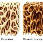 Implantologia, osteointegrazione
