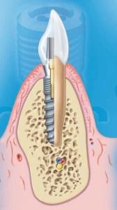 implanty Dentaurum
