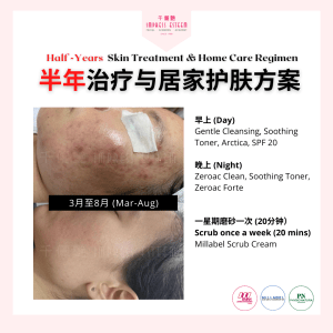 Half-Year Skin Treatment and Home Regimen 半年治疗与居家护理方案