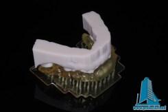 Ghidaje stomatologice pentru implant dentar