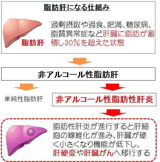 脂肪肝から非アルコール性脂肪性肝炎となり肝硬変や肝がんに進展する