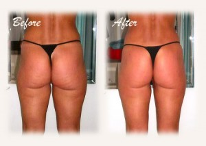 TruthAboutCellulite2