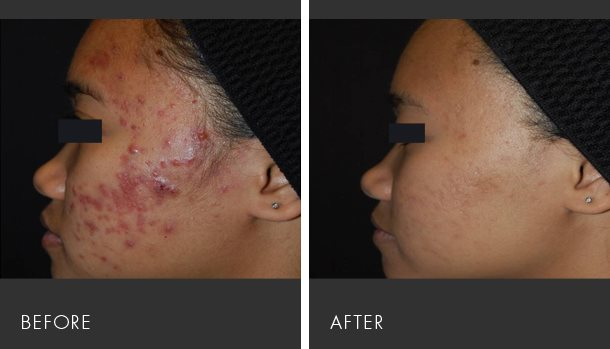 black spots removal