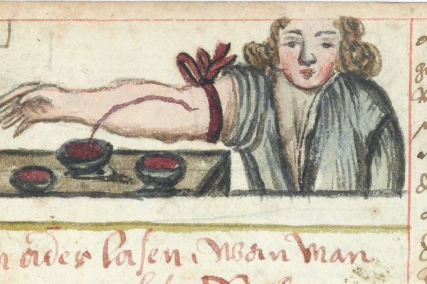L0041074 WMS 990 Bloodletting Credit: Wellcome Library, London. Wellcome Images images@wellcome.ac.uk http://wellcomeimages.org Man wearing a tourniquet, letting blood into a bowl. Two other bowls already filled with blood sit nearby. ca. 1675 Arzneibuch. Compendium of popular medicine and surgery, receipts, etc., in German. Compiled for the use of a House of the Franciscan Order, probably in Austria, or South Germany. Published: - Copyrighted work available under Creative Commons Attribution only licence CC BY 4.0 http://creativecommons.org/licenses/by/4.0/