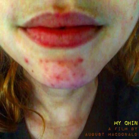 My Chin