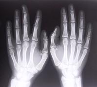 xray-of-hands-1526780