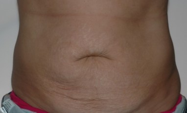 abdominoplasty3,front,before