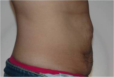 abdominoplasty3,side,before