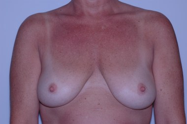 breast aug,before,front 5