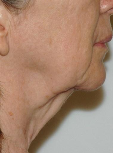 facenecklift3,side,before