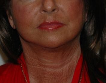 facenecklift4,front,after