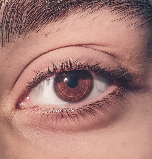 Dementia And Eye Conditions