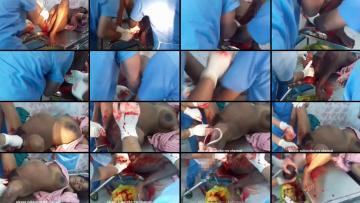 लड़की की चूत से बच्चा बाहर निकलते हुए विडियो Baby Coming Out From Girls Pussy