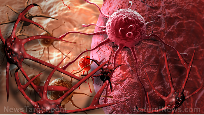 Medical BOMBSHELL: Chemotherapie blijkt kanker te verspreiden