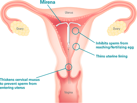A diagram of a uterus with a Mirena IUD placed.