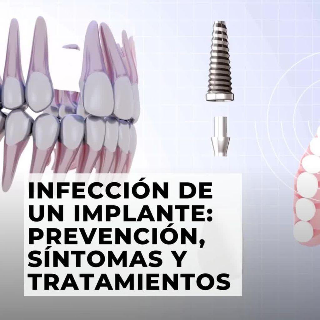 Los implantes dentales son cada vez más frecuentes dado que la técnica está muy
