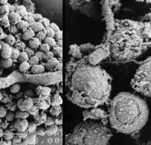 toxigenic mold allergies