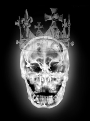 Striking skull portraits of King Richard III produced using University of Leicester X-rays.