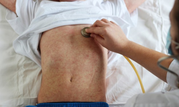 Measles Outbreak in Vancouver Sparks Public Outcry