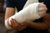 Personal Injury Attorney Indianapolis Schiller Law Offices