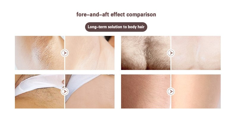 3in1 700000 pulsed IPL Laser Hair Removal Device Permanent Hair Removal IPL laser Epilator Armpit Hair Removal machine 14