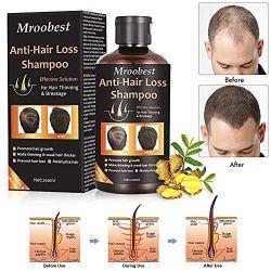 Anti-Hair Loss Shampoo, Hair Regrowth Shampoo, Natural Old Ginger Hair