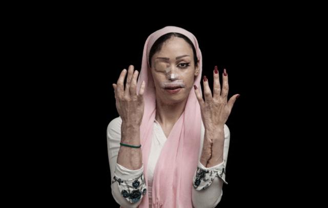 """Vítima de um ataque com ácido sulfúrico no Irã. Ambas as fotos fazem parte de uma série chamada """"Fogo de Ódio"""" sobre o ato violento que é dirigido frequentemente a mulheres e crianças no Irã. Fotografia do vencedora do prêmio L'Iris d'Or/Fotógrafo do ano, vencedora da categoria """"Questões Contemporâneas"""" foto © Asghar Khamseh, Iran, Photographer of the Year, 2016 Sony World Photography Awards"""