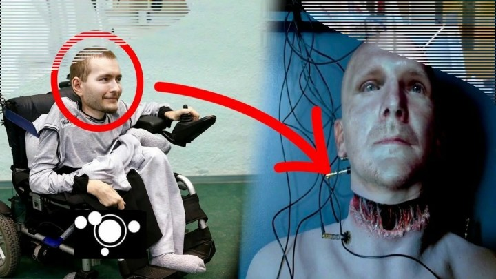 Last minute! Scientists achieve the First Successful Human Head Transplant (Video)