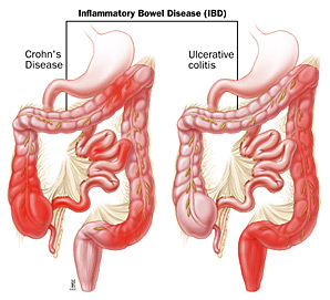 a digestive tract with CD and a digestive tract with UC