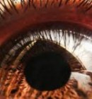 Surgery versus Natural Eye Exercises