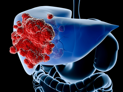 http://amresolution.com/2013/02/04/processed-fructose-found-to-cause-liver-damage/