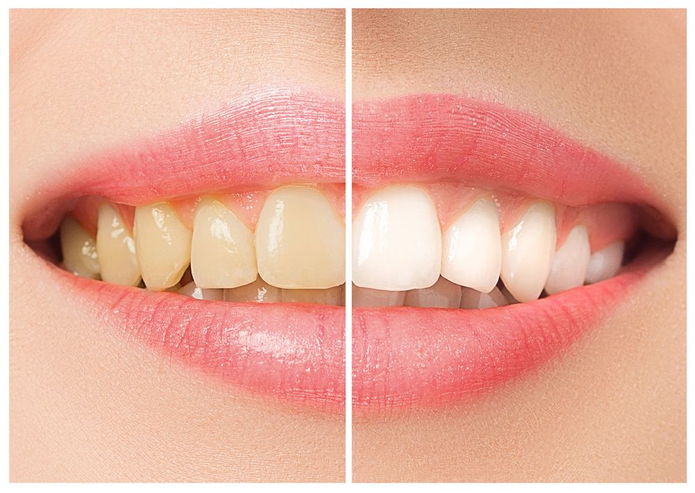 How to avoid staining your teeth by drinking coffee?
