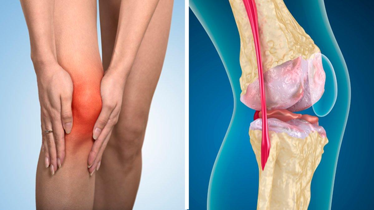 Melhore a dor nos joelhos e articulações com essa receita caseira, fácil e eficaz