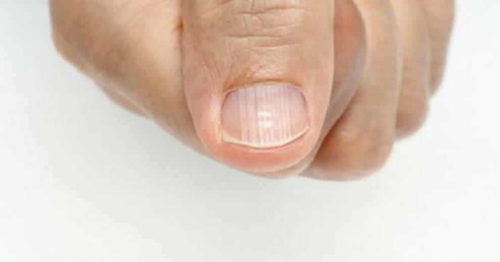Você nem imagina porque surge essas listras brancas nas suas unhas