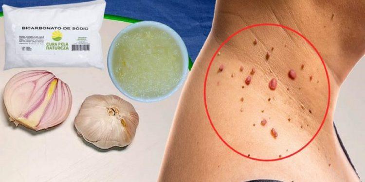 Cebola, alho e bicarbonato: o melhor remédio para eliminar verrugas