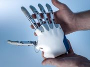 ingegneria robotica-mano bionica-trapianto mano bionica-ospedale gemelli di roma