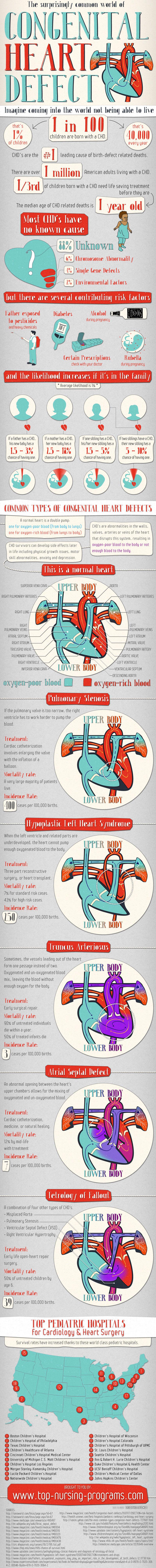 congenital-heart-defect
